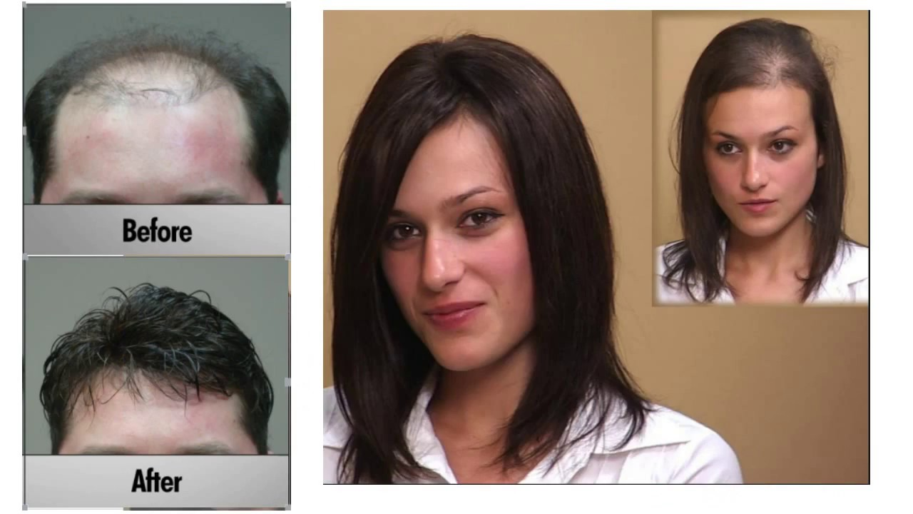 Perfect Hair Integration System For Men And Women Shunfa Hair