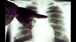 ★Этот овощной коктейль от Австрийского врача вылечил 45 000 больных РАКОМ. Диета при онкологии.