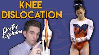 Auburn Gymnast KNEE DISLOCATION   Doctor Explains