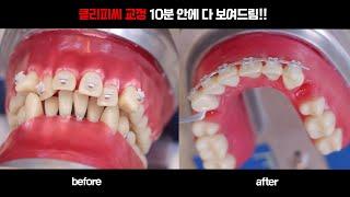 클리피씨 치아교정 3개월의 과정을 10분안에 보여주는 …