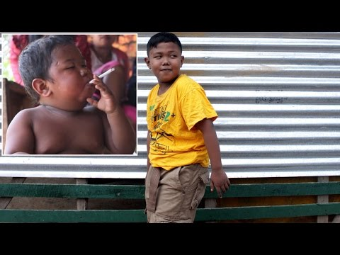 Former Chain-Smoking Toddler, Now 9, Healthy After Kicking Habit