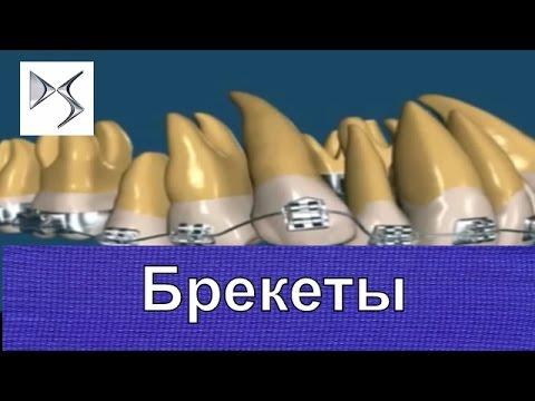 Ортодонтия — Википедия