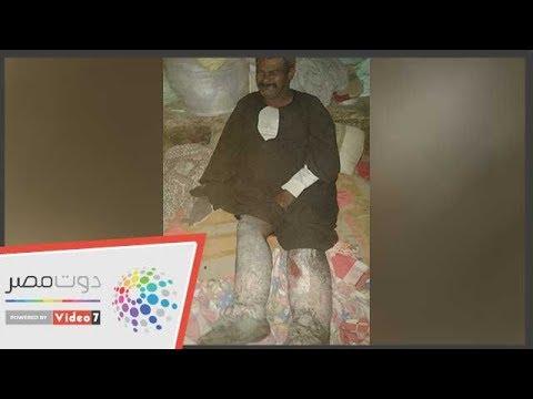 ليست مأساة واحدة.. عامل بسوهاج يعاني من مرض نادر وتراكم الديون  - 23:54-2018 / 11 / 28