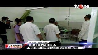 Infeksi Virus Hepatitis A (HAV) | Penyebab, Gejala, dan Pengobatannya.