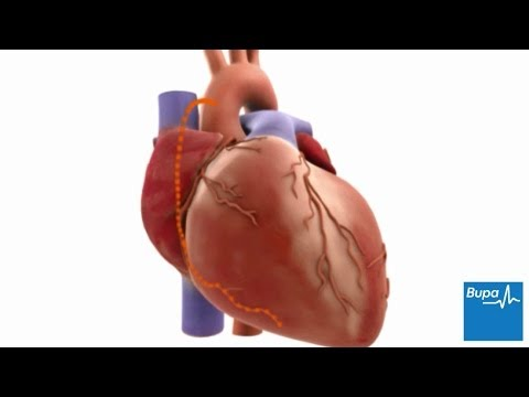 How coronary artery bypass graft (CABG) surgery is carried out