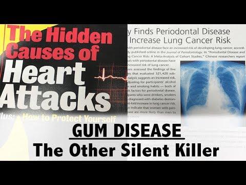 Gum Disease The Other Silent Killer