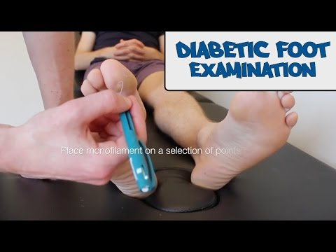 Diabetic foot examination - OSCE guide (New Version) de YouTube · Duração:  5 minutos 32 segundos
