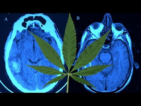Does Smoking Weed Restructure Your Brain?