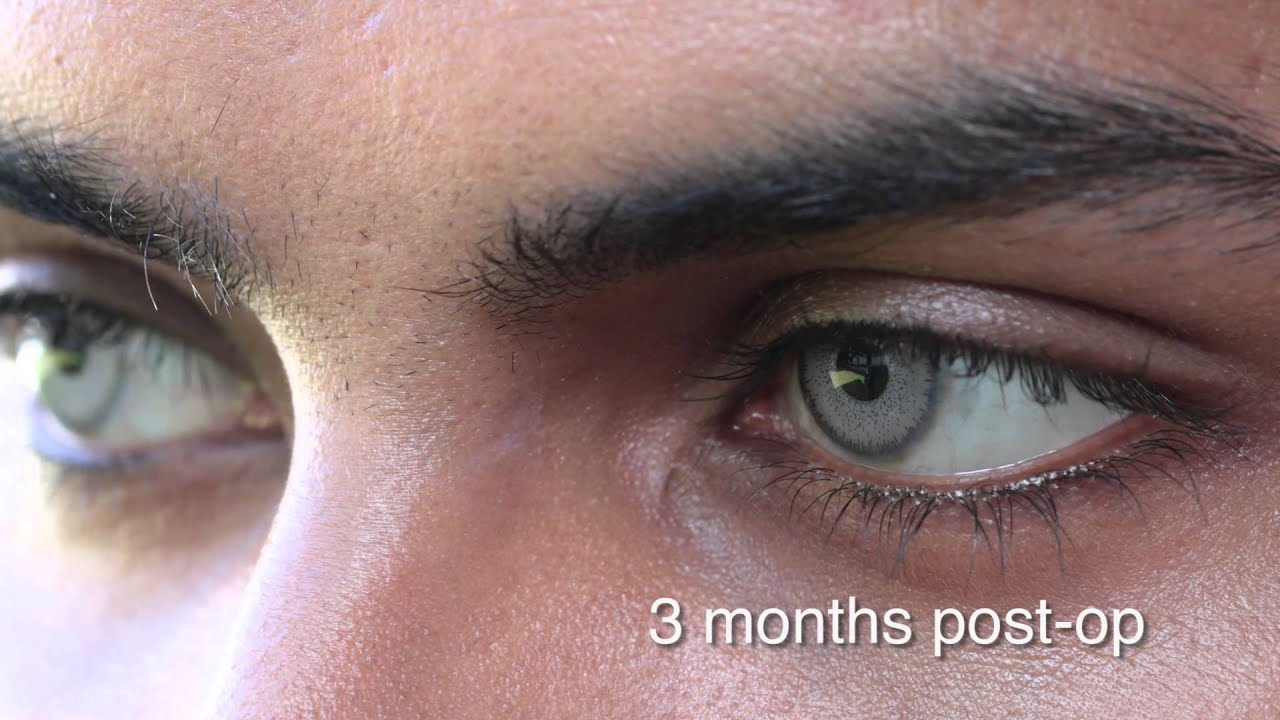 Eye color change surgery 3 months post op / brightocular - YouTube