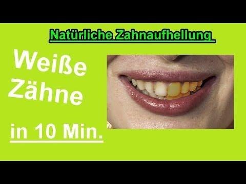 Zähne Aufhellen In 10 Minuten U2013 Zähne Zuhause Selber Bleichen U2013 DIY  Bleaching Machen   Weisse Zähne