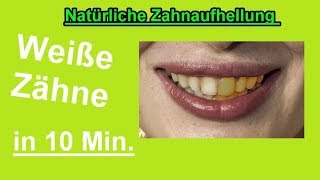 Zähne aufhellen in 10 Minuten – Zähne zuhause selber bleichen – DIY Bleaching machen - Weisse Zähne