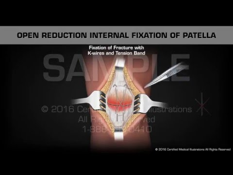 Open Reduction Internal Fixation of Patella