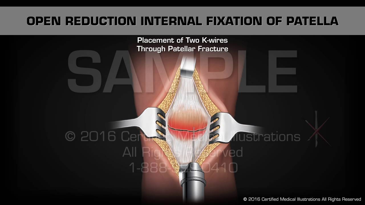 Open Reduction Internal Fixation Patella
