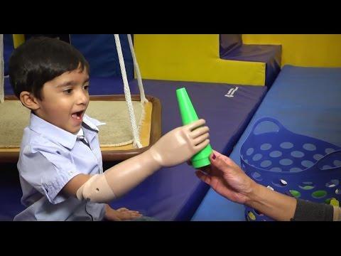 Prosthetic Myoelectric Arm Changes Child39s Life YouTube
