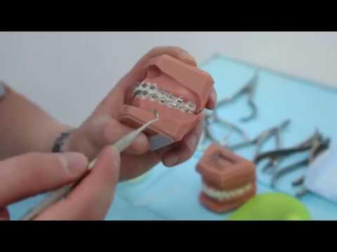 В брекетах болят зубы