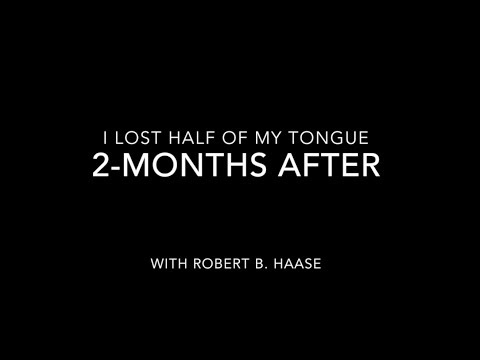 Two Months After Losing Half My Tongue (Hemiglossectomy)
