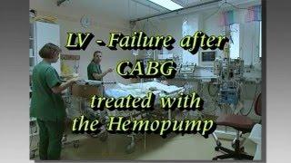 LV - Failure after CABG treated with the Hemopump  - Hjälphjärta