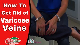 How to Get Rid of Varicose Veins : Circulation Part 1 : Home Remedies - VitaLife Show Episode 158