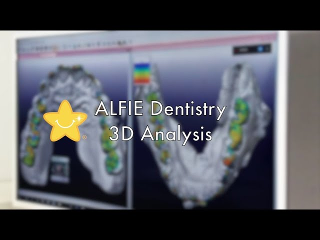 3D Dentistry Analysis [VIDEO]