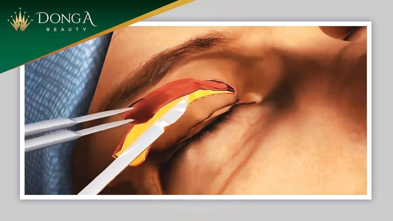 Mô phỏng quá trình cắt mí mắt tại Thẩm mỹ viện Đông Á