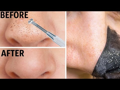 how-to-remove-blackheads-naturally-at-home--how-to-get-rid-of-blackheads