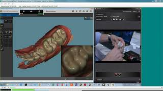 Getting Started with the CS 3600 Intraoral Scanner