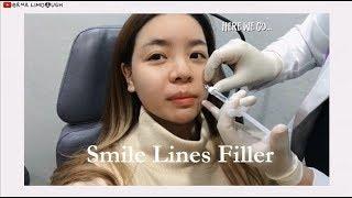 Smile Line Filler | Erna Limdaugh