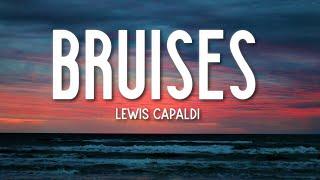 Bruises - Lewis Capaldi (Lyrics) 🎵