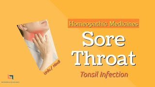 Sore Throat Homeopathic Treatment [URDU] | How to cure Tonsil Infection