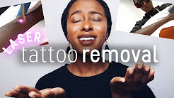 Laser Tattoo Removal Before and After: Removal Cost, Why I'm Removing My Arabic Tattoo