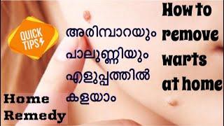 How To Remove Warts Malayalam
