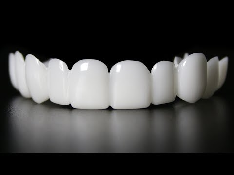 Cosmetic Dentist HATE this VIDEO! Invisalign, Snap On Smile Dentist too! Why?