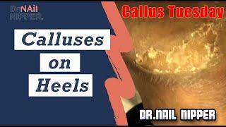 Calluses on Heels Callus Tuesday 2020