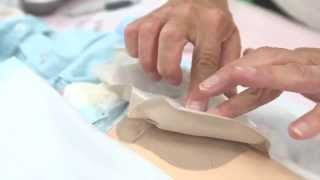 Changing a two-piece ostomy bag for parents