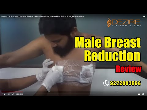 Dezire Clinic Gynecomastia Review - Male Breast Reduction Hospital in Pune, Maharashtra