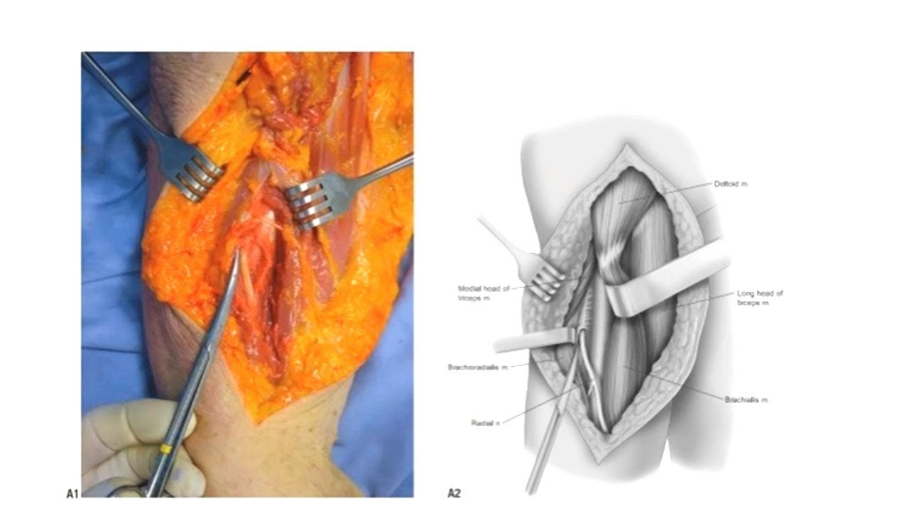 Extensile Anterolateral Approach to the Humerus.