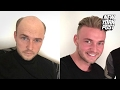 Bald Guys Are Wigging Out for These Believable Hairpieces from Quiff and Co. | New York Post