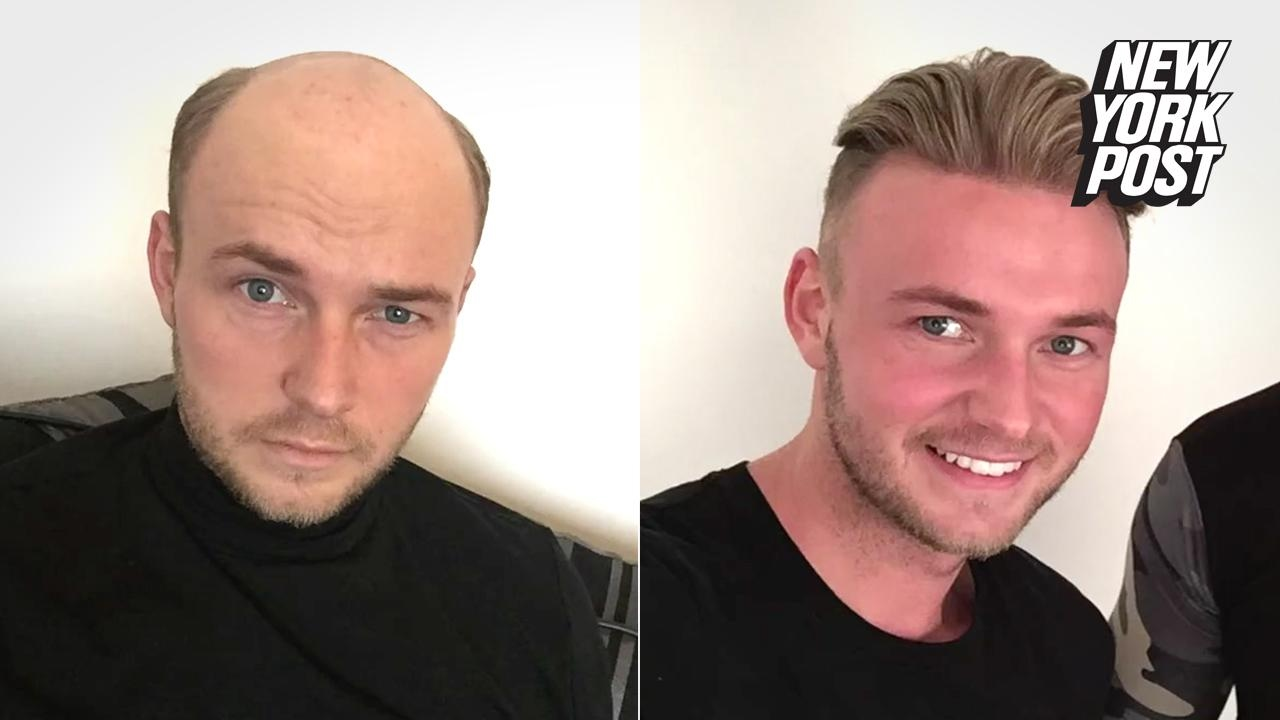Guys are wigging out for these believable hairpieces - YouTube