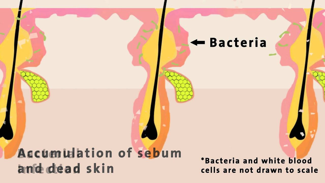 chemmatters the chemistry of acne [ 1280 x 720 Pixel ]