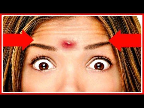 Пигментные пятна на лице: как убрать в домашних условиях