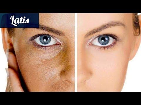 Расширенные поры на коже лица? Всего лишь 2 ингредиента решат эту проблему.
