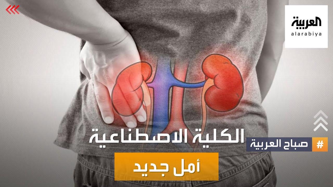 صباح العربية | أمل جديد لمرضى الفشل الكلوي.. الكلية الاصطناعية باتت قريبة جدا  - نشر قبل 16 ساعة