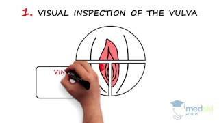 Obstetrics and Gynecology – Vaginal Discharge / Vulvar Pruritus: By Kate Pulman M.D.