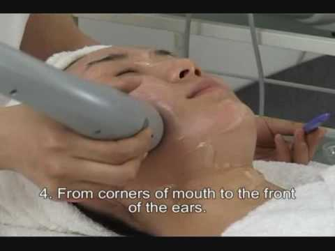 Mini RF wrinkle removal and skin tightening treatment video