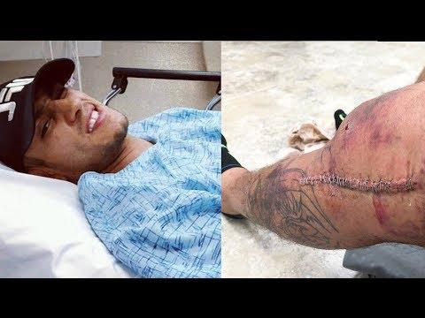 Тони Фергюсон успешно перенес операцию на колене.