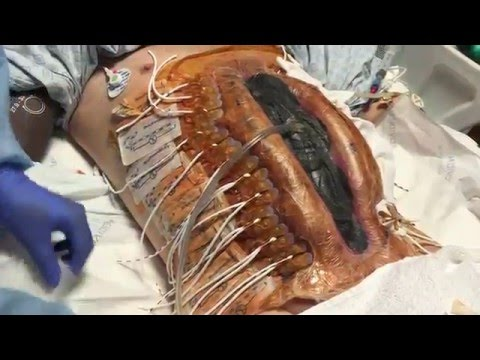 ABRA Ruptured AAA Abdominal aortic aneurysm repair