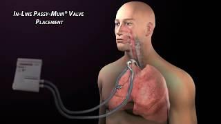 Passy Muir Valve with Mechanical Ventilation