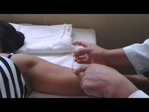 implante anticonceptivo subdermico paraguay