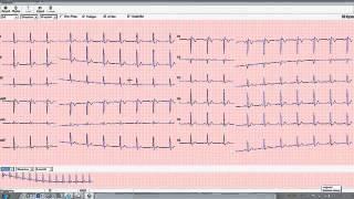 Welch Allyn Pro Resting ECG User Guide