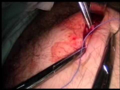 biopsia de prostata video